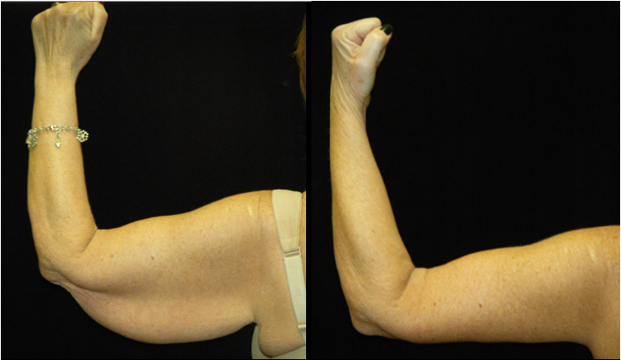 Atlanta Arm Lift Patient 1 Before & After