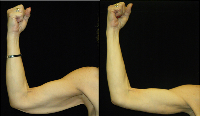 Atlanta Arm Lift Patient 2 Before & After