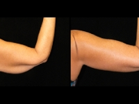 Atlanta Arm Lift Patient 3 Before & After
