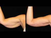 Atlanta Arm Lift Patient 4 Before & After