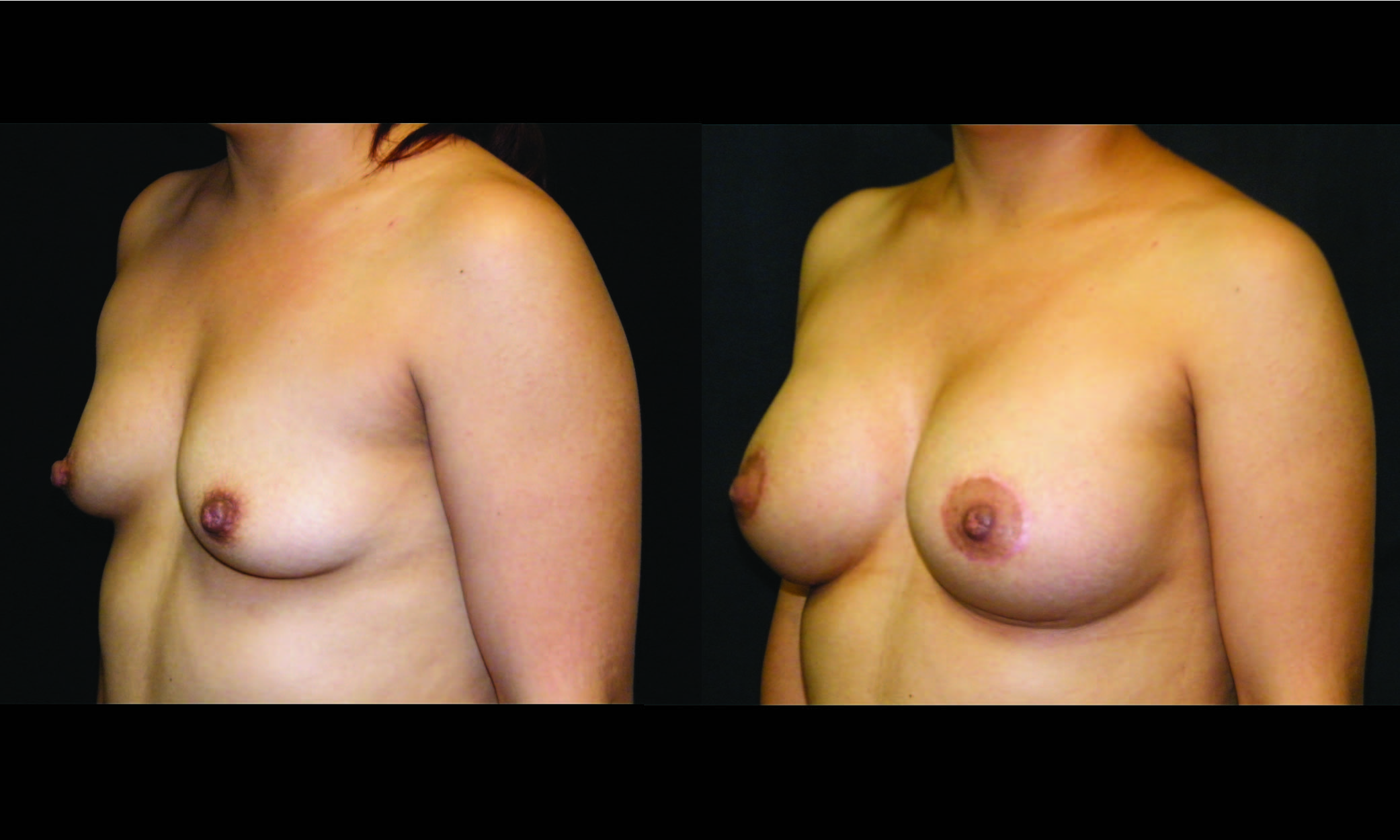Breast enhancement beckley wv