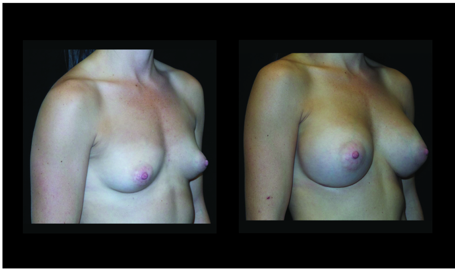 Atlanta Breast Augmentation Patient 90 Before & After