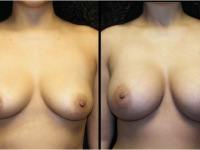 Atlanta Breast Augmentation Patient 46 Before & After