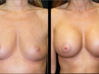 Atlanta Breast Augmentation Patient 47 Before & After