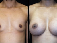 Atlanta Breast Augmentation Patient 48 Before & After