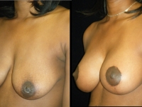 Atlanta Breast Augmentation Patient 49 Before & After