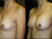 Atlanta Breast Augmentation Patient 50 Before & After