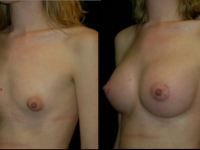 Atlanta Breast Augmentation Patient 51 Before & After