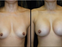 Atlanta Breast Augmentation Patient 52 Before & After