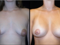 Atlanta Breast Augmentation Patient 54 Before & After