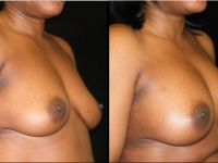 Atlanta Breast Augmentation Patient 25 Before & After