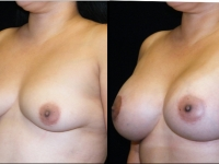 Atlanta Breast Augmentation Patient 26 Before & After