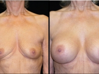 Atlanta Breast Augmentation Patient 27 Before & After