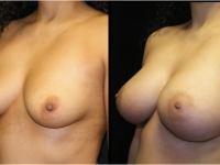 Atlanta Breast Augmentation Patient 28 Before & After