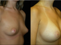 Atlanta Breast Augmentation Patient 29 Before & After
