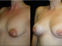 Atlanta Breast Augmentation Patient 33 Before & After