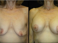 Atlanta Breast Augmentation Patient 34 Before & After