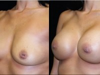 Atlanta Breast Augmentation Patient 35 Before & After