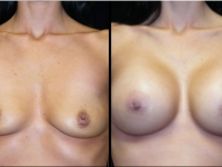 Atlanta Breast Augmentation Patient 36 Before & After