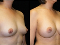 Atlanta Breast Augmentation Patient 37 Before & After