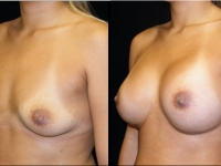 Atlanta Breast Augmentation Patient 38 Before & After