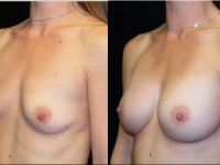 Atlanta Breast Augmentation Patient 39 Before & After