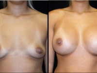Atlanta Breast Augmentation Patient 40 Before & After
