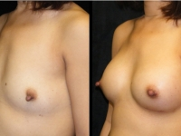 Atlanta Breast Augmentation Patient 41 Before & After