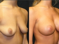 Atlanta Breast Augmentation Patient 42 Before & After