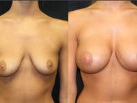 Atlanta Breast Augmentation Patient 43 Before & After