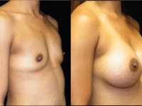 Atlanta Breast Augmentation Patient 44 Before & After