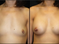 Atlanta Breast Augmentation Patient 22 Before & After