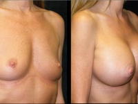 Atlanta Breast Augmentation Patient 23 Before & After