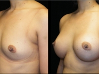 Atlanta Breast Augmentation Patient 24 Before & After