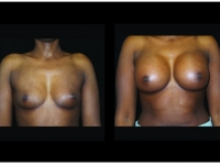 Atlanta Breast Augmentation Patient 88 Before & After