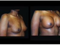 Atlanta Breast Augmentation Patient 89 Before & After