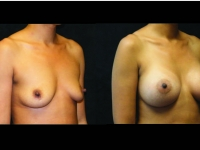 Atlanta Breast Augmentation Patient 76 Before & After