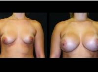 Atlanta Breast Augmentation Patient 01 Before & After