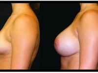 Atlanta Breast Augmentation Patient 02 Before & After