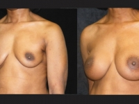 Atlanta Breast Augmentation Patient 15 Before & After