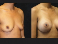 Atlanta Breast Augmentation Patient 16 Before & After