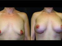 Atlanta Breast Augmentation Patient 68 Before & After