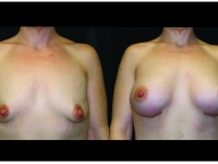 Atlanta Breast Augmentation Patient 67 Before & After