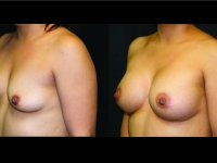 Atlanta Breast Augmentation Patient 69 Before & After