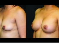 Atlanta Breast Augmentation Patient 70 Before & After
