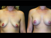 Atlanta Breast Augmentation Patient 72 Before & After