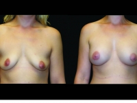 Atlanta Breast Augmentation Patient 71 Before & After