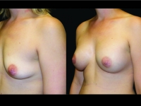 Atlanta Breast Augmentation Patient 74 Before & After