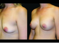 Atlanta Breast Augmentation Patient 73 Before & After