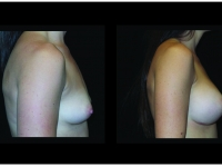 Atlanta Breast Augmentation Patient 91 Before & After